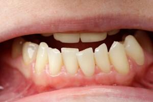 Eine professionelle Zahnreinigung
