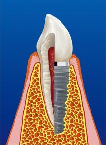 Implantat