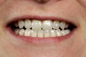 Nach dem Bleichen der Zähne
