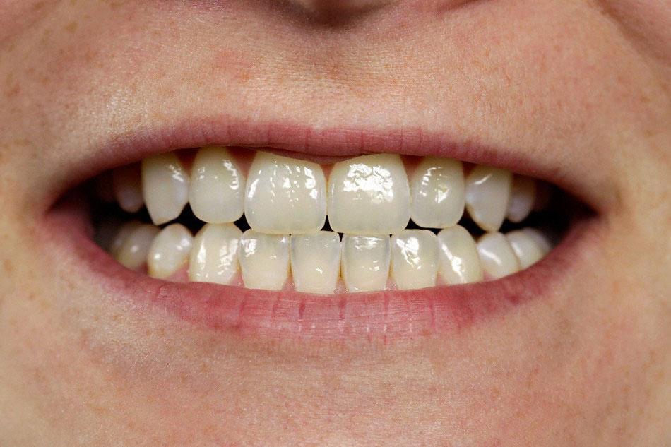 Zahne