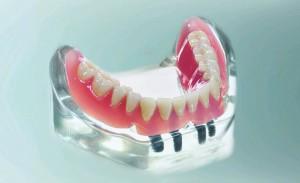 Verankerungen für herausnehmbaren Zahnersatz
