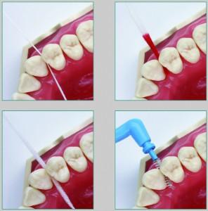 Zahnzwichenräume Putzmethoden