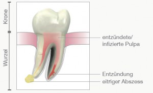 Zahnentzündungen